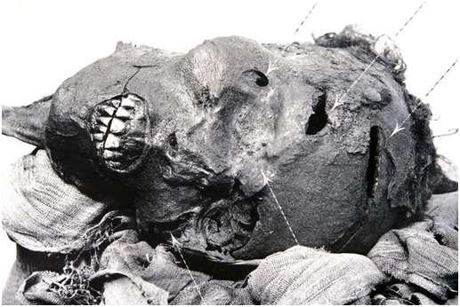 Las heridas en la cabeza de la momia de Sequenre Tao